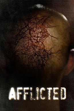 Afflicted (2013) มหาภัยเชื้อเหนือมนุษย์